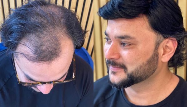 Male hair systems before and after